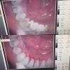 Стоматолог в Москве,  для братьев и сестер скидка